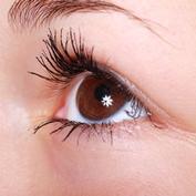 甲状腺眼症(バセドウ病眼症)